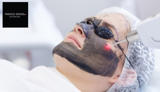 1-Session Face Carbon Laser