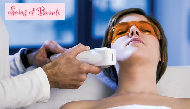 Underarms Diode Laser Hair Removal
